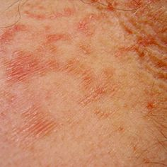 Some people with rheumatoid arthritis have symptoms outside of joint aches and pains.Learn about the rash livedo reticularis and how it's diagnosed and treated.