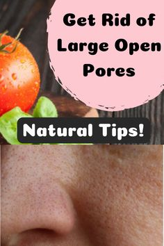 How to get Rid Of Brown Spots on Face Sun Spots On Skin, Black Spots On Face, Brown Spots On Hands, Age Spots On Face, Spots On Legs, Dark Spots, Sunspots On Face, Spots On Forehead, Skin Moles