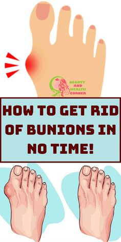 Why Do Doctors Keep This Simple Recipe Away From The Public? Here Is How To Get Rid Of Bunions Completely Natural! Bunion Remedies, Bunion Relief, Foot Pain Relief, How To Treat Bunions, Get Rid Of Bunions, Bunion Shoes, Bone And Joint, Feet Care, Health And Wellness
