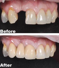 Dental bridge to replacing missing tooth Teeth Implants, Dental Implants, Wisdom Teeth Food, Dental Bridge Cost, Tooth Powder, Tooth Pain, Cast Iron Recipes, Soft Foods, Dental Surgery