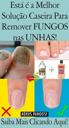 Fungus infections affecting the toenails and hands are known in medical terms as Onychomycosis, a condition that can cause discoloratio. Free To Use Images, Toe Nails, Fungi, Home Remedies, The Cure, Easy Diy, Beauty Hacks, Manicure, Facebook