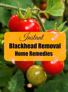 Instant Blackhead Removal Home Remedies