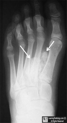 Thyroid acropachy Radiology Case