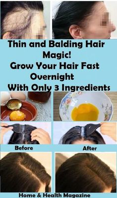 As we age our hair tends to become thin and dry, however, restoring our hair is not as hard as we think it is. We can restore it overnight!