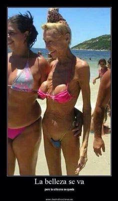 Silicona cirugía bikini