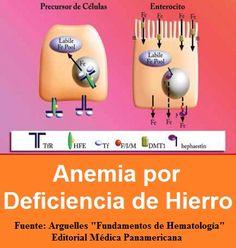 anemia por quebranto de hierro pdf