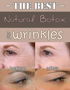 The best natural botox for wrinkles.