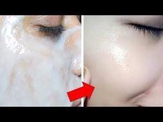 15 Dakika Gibi Kısa Bir Sürede Yüzünüz Bembeyaz Olacak (Beyazlatıcı Doğal Yüz Maskeleri) - YouTube
