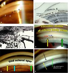 """Structures within the anterior chamber angle from posterior to anterior: """"I Can See The Stupid Line"""" - Iris, CB, SS, TM, SC, Schwalbe's Line"""