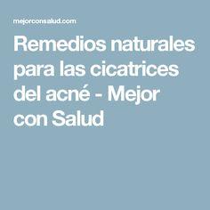 Remedios naturales para las cicatrices del acné - Mejor con Salud