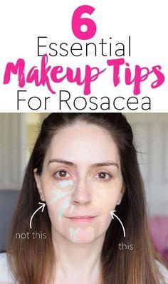 Rosacea Makeup, Acne Rosacea, Best Makeup For Rosacea, Best Foundation For Rosacea, Ocular Rosacea, Acne Skin, Face Makeup Tips, Beauty Tips, Make Up