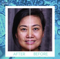 AgeLoc LumiSpa Before & after Nu Skin Ageloc, Spa, Your Skin, Beauty Hacks, Product Launch, Skin Care, Skin Products, Business, Vogue