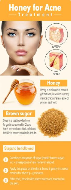 Best and effective honey methods for curing acne and pimples.
