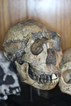 Turkana Boy, a 1.5 million year old Homo Ergaster/Homo Erectus from Kenya.  He's the most complete early human skeleton known to date.  He was 8-14 years old, and died of an abcess in his mouth.