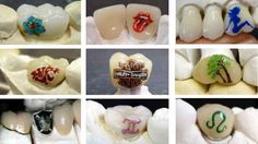This is going too far!!   Teeth Tattoos Are A Hot New Thing For Some Reason