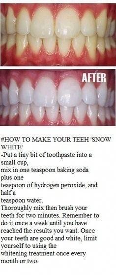 Natural Teeth Whitening Remedies Get shinning white teeth in 5 minutes. Best Teeth Whitening Kit, Teeth Whitening Remedies, Natural Teeth Whitening, Skin Whitening, Homemade Teeth Whitening, Crest Whitening, White Teeth Tips, Glow Up Tips, Teeth Care