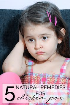 5 Natural Remedies for Chicken Pox - help your child with the itchiness of chicken pox with these simple at home natural remedies for relief Natural Parenting, Parenting Advice, Practical Parenting, Chicken Pox, Parent Resources, Mom Advice, Raising Kids, Healthy Kids, Healthy Living