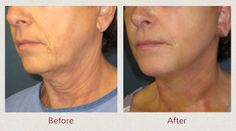 Face Lift- before and after #cosmeticsurgery #facelift