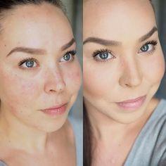 Ongelmaihon meikki Vichy Dermablend, Beauty Hacks, Beauty Tips, Makeup, Diy, Make Up, Bricolage, Face Makeup, Beauty Tricks