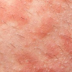 Learn how to heal from some common skin rashes. Types Of Skin Rashes, Common Skin Rashes, Atopic Dermatitis Treatment, Body Rash, Personal Care, Health And Wellness
