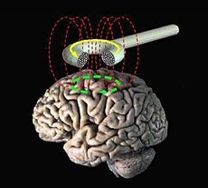 """Transcranial magnetic stimulation (TMS) is a noninvasive method used to stimulate small regions of the brain. During a TMS procedure, a magnetic field generator, or """"coil"""" is placed near the head of the person receiving the treatment. The coil produces small electrical currents in the region of the brain just under the coil via electromagnetic induction."""