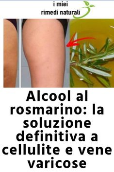 Rosemary alcohol: the ultimate solution to cellulite and v .- Alcool al rosmarino: la soluzione definitiva a cellulite e vene varicose Rosemary alcohol: the ultimate solution to cellulite and varicose veins - Beauty Care, Beauty Hacks, Hair Beauty, Varicose Veins, Natural Skin Care, The Cure, Shampoo, Health Fitness, Herbs
