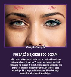 PROSTY TRIK NA POZBYCIE SIĘ CIENI POD OCZAMI! Beauty Care, Diy Beauty, Beauty Hacks, Face Care, Body Care, Skin Care, Eyeliner Designs, K Om, Cosmetic Treatments