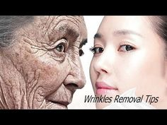 After 1 Night - Remove All Rrinkles On The Face Home Remedies For Wrinkles, Wrinkle Remedies, Good Night Gif, Remove All, 1st Night, Wrinkle Remover, Beauty Hacks, Beauty Tips, Face Serum