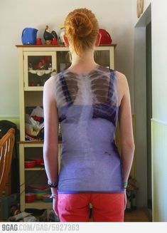 What a Scoliosis spine looks like on its owner.