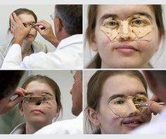 Chrissy Steltz of Oregon receives a facial prosthesis after 11 years.  Chrissy was shot in the face with a shotgun when she was 16.  The blast destroyed 2/3 of her facial structure--including both of her eyes and her nose.