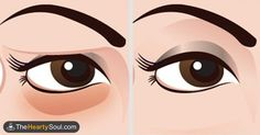 For eye bags : 1/2 ounce witch hazel extract 10 drops chamomile essential oil 1/2 ounce pure aloe vera gel 10 drops lavender essential oil Directions:  Combine all ingredients into a small glass jar with a lid and blend well. Place the jar in the refrigerator overnight. Upon waking, apply a small amount of the solution around the eyes and let it sit as long as possible. Gently remove. Apply a natural moisturizer.