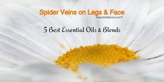 Is there anything more unsightly than spider veins on your legs? Learn abour the best essential oils for spider veins in this article. Coconut Oil Cellulite, Cellulite Scrub, Cellulite Remedies, Anti Cellulite, Toenail Fungus Treatment, Essential Oils Guide, Essential Oil Uses, Essential Oil For Spiders, Cellulite