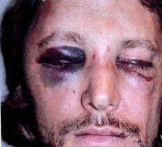 Gabriel Aubry and Oliver Martinez got into a brutal fight.