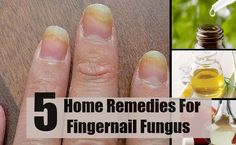 The Top 5 natural ways to get rid of toe nail fungus