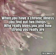 Migraine is an invisible, chronic, and genetic disease. Chronic Migraines, Rheumatoid Arthritis, Chronic Pain, Arthritis Exercises, Ulcerative Colitis, Autoimmune Disease, Crohn's Disease, Tendinitis, Chronic Illness Quotes