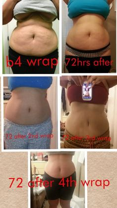 It works Ultimate body wrap!! Great results for this customer. Get them wholesale for a box of 4 wraps for $59 as a loyal customer Questions? call/text 520-840-8770 http://bodycontouringwrapsonline.com/wholesale