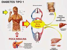 AVANCES: CREAN POSIBLE CURA PARA TRATAR LA DIABETES TIPO 1  ...