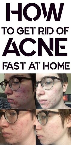 Acne and also Acne Remedies. All-natural means to remove and also prevent Acne. Warts On Hands, Warts On Face, Skin Bumps, Skin Moles, How Do You Remove, How To Get Rid Of Acne, Get Rid Of Warts, Remove Warts, Remove Acne