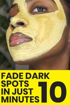 "This Sell-Out Mask Fades Dark Spots & Hyperpigmentation! ⭐️⭐️⭐️⭐️⭐️ ""Absolutely love this product. Balances my skin, provides clarity, tones, and gives me such confidence to not wear makeup"" – Cat D Brown Spots On Skin, Brown Spots On Face, Skin Spots, Brown Skin, Dark Brown, Cream For Dark Spots, Spots On Legs, Skin Moles, Hair Removal Methods"