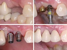 Get fast quotes for Dental Implants in Ny