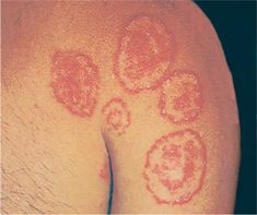 How to get rid of ringworm fast