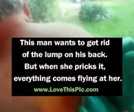 Man Wants To Get Rid Of Large Lump On His Back, But When She Pricks It...OMG! It All Comes Flying Out!