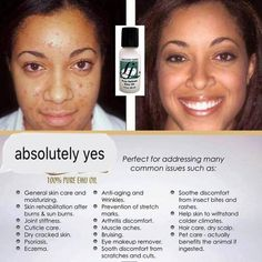 Oily Skin Care, Skin Care Tips, Pimple Scars, Blemish Remover, Skin Care Routine 30s, Emu Oil, How To Get Rid Of Pimples, Black Skin Care, Clear Skin Tips