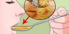 . Los ingredientes de este remedio para el colesterol presión alta. son fáciles de conseguir y sus precios no son elevados.