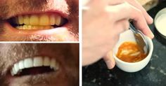 Este homem clareia os dentes com um truque absurdamente simples. Tudo o que ele usa é uma pasta e um ingrediente secreto.