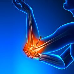 Get rid of elbow pain: When pain in the elbow joint, the area where the humerus meets the radius and ulna, causing difficulty in movement and normal actions Tennis Arm, Tennis Elbow, Radius And Ulna, Heart Circulation, Elbow Pain, Eft Tapping, Bone And Joint, Anti Inflammatory Diet, Stem Cells