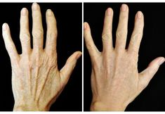 Hand Rejuvenation to Get Rid of Those Old Lady Hands - Beauty Treatments for the Body - Yorgo Angelopoulos Exfoliating Face Scrub, Exfoliating Gloves, Exfoliate Face, Younger Skin, Look Younger, Botox Fillers, Dermal Fillers, Essential Oils For Skin, Old Hands