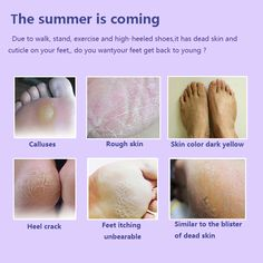 Baby Foot Mask Peeling Mask Exfoliating Mask For Feet Mask Remove Dead Skin Cuticles Heel Foot Care Socks for Pedicure See More . Peeling Cuticles, Manicure Y Pedicure, Pedicure At Home, Face Scrub Homemade, Cracked Skin, Skin Tag, Baby Feet, Feet Care, Skin Care Tips