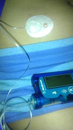 Type 1 Diabetes Awareness - Insulin Pump site changes