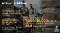 Malawi failing to protect albino community: Amnesty - News from Al Jazeera Albinism, Social Injustice, Al Jazeera, Disorders, Fails, Community, News, Make Mistakes